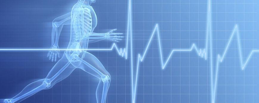 Έντονη άσκηση και ανάπτυξη καρδιακής αρρυθμίας